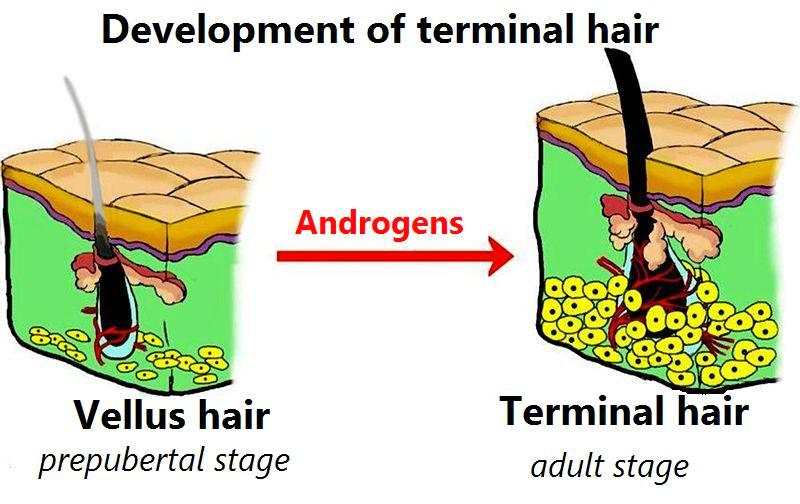 Development of terminal hair from vellus. Why a maturated minox beard is permanent.